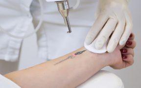 Laserowe usuwanie tatuazu – przebieg zabiegu i przeciwwskazania